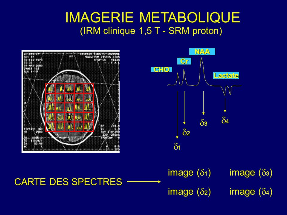 IMAGERIE METABOLIQUE (IRM clinique 1,5 T - SRM proton) 4 3 2 1