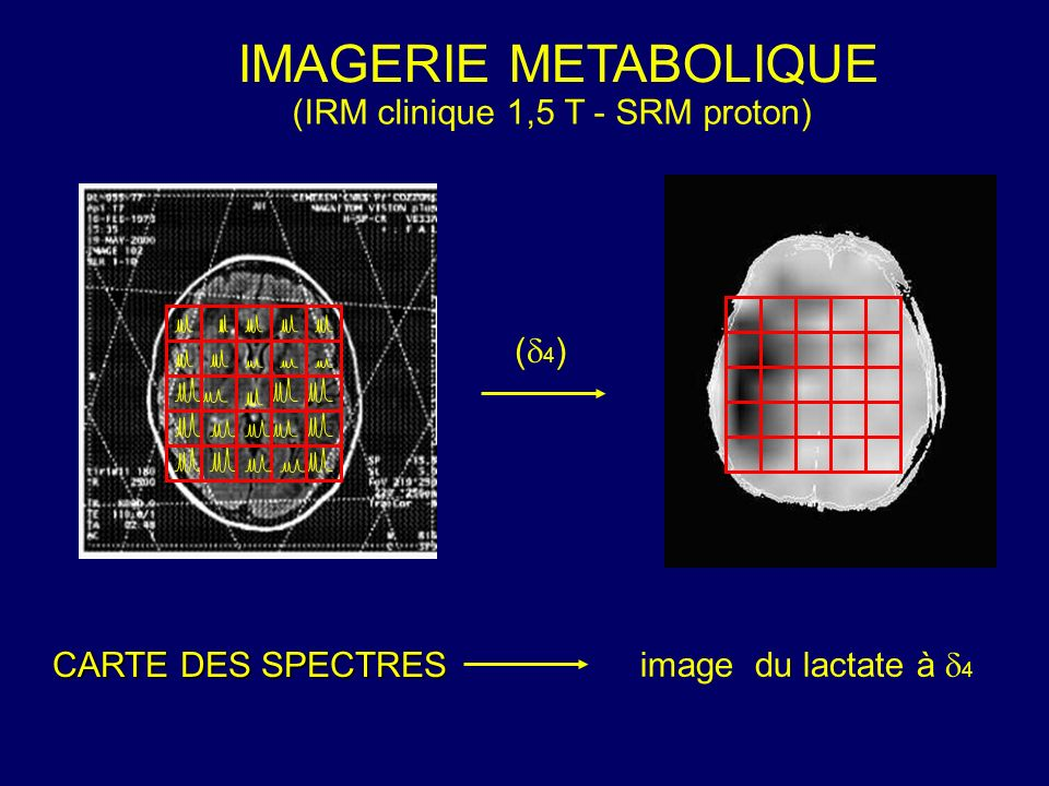 IMAGERIE METABOLIQUE (IRM clinique 1,5 T - SRM proton) (4)