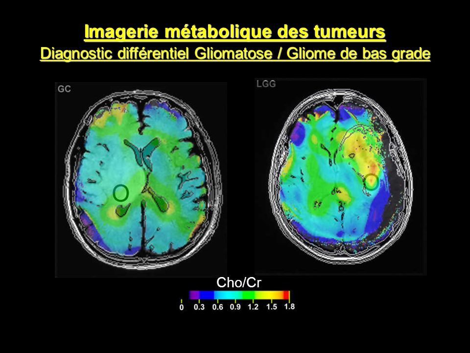 Imagerie métabolique des tumeurs