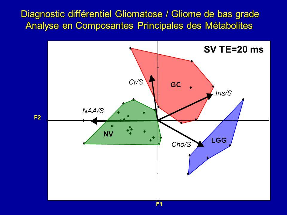 Diagnostic différentiel Gliomatose / Gliome de bas grade