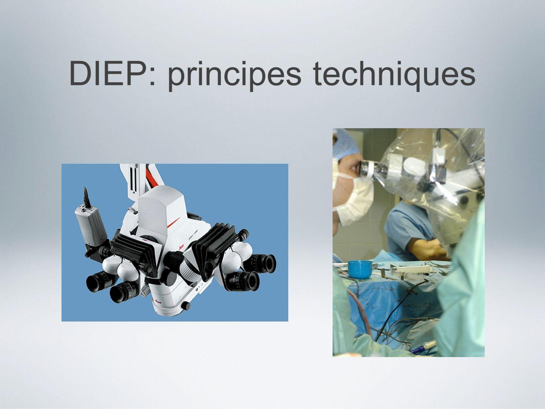 DIEP: principes techniques