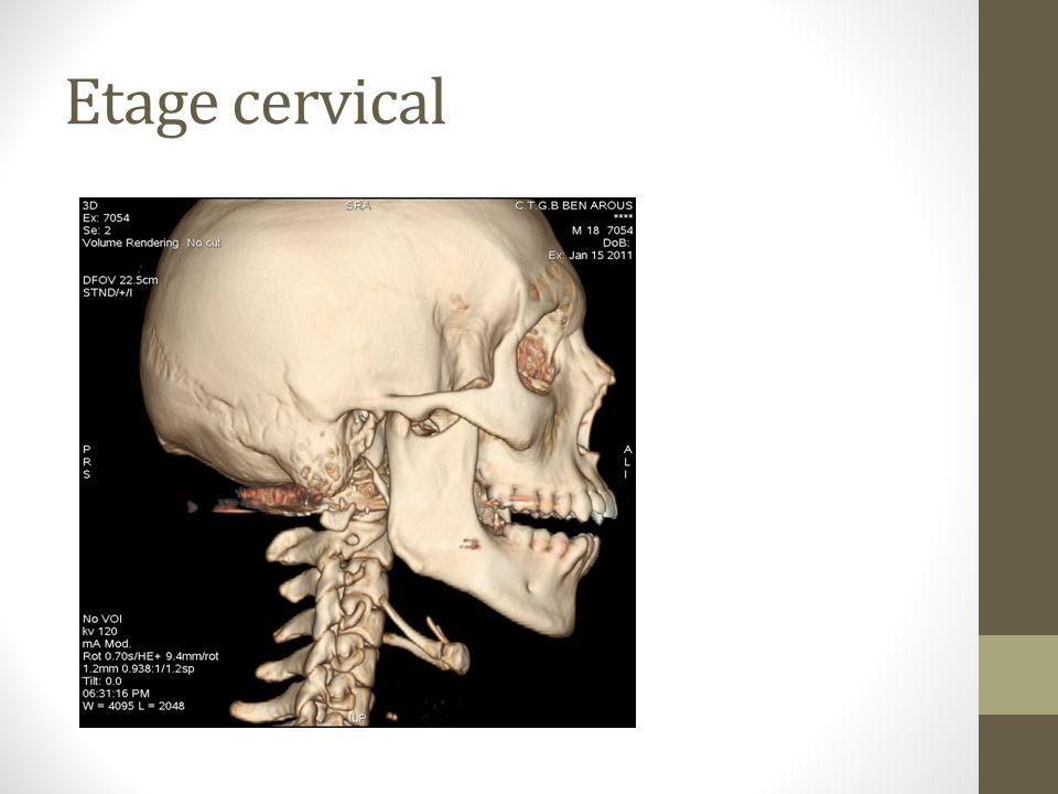 Etage cervical