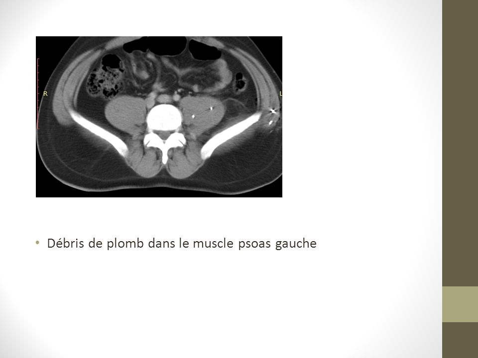 Débris de plomb dans le muscle psoas gauche
