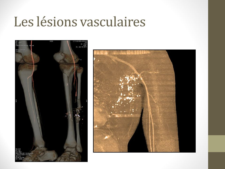 Les lésions vasculaires