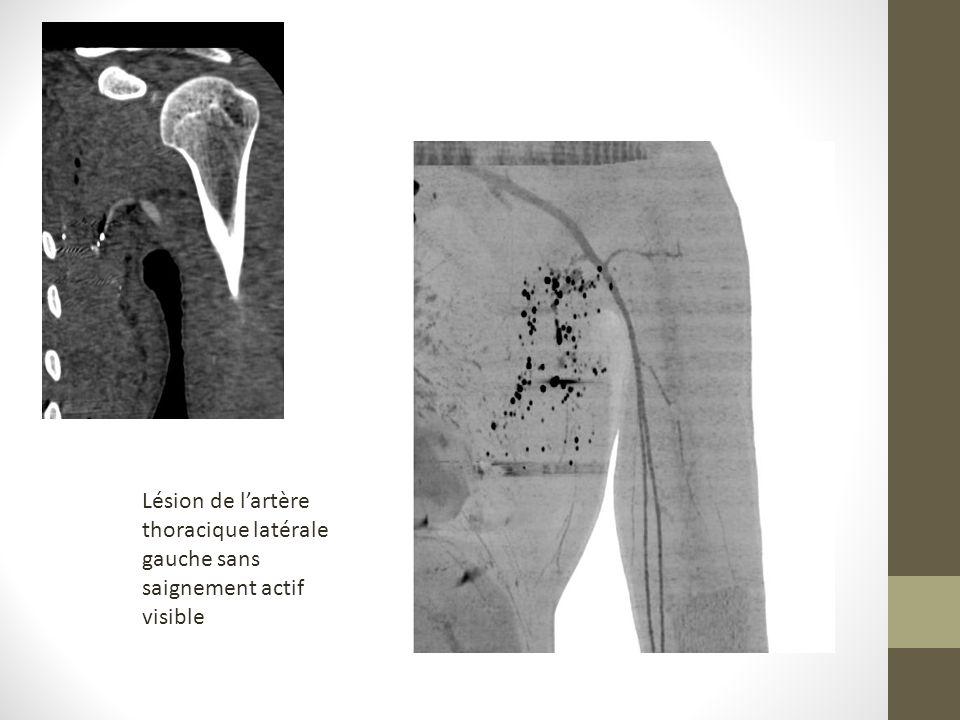 Lésion de l'artère thoracique latérale gauche sans saignement actif visible