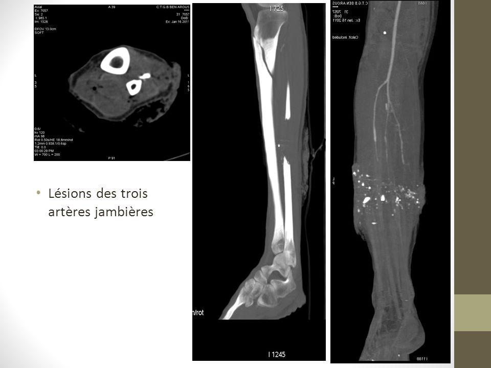 Lésions des trois artères jambières