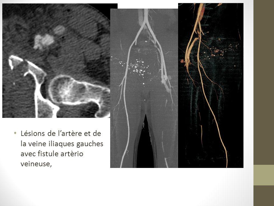 Lésions de l'artère et de la veine iliaques gauches avec fistule artèrio veineuse,