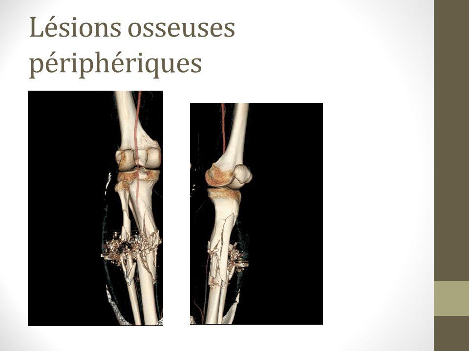 Lésions osseuses périphériques