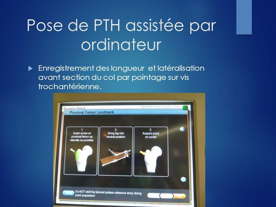 Pose de PTH assistée par ordinateur