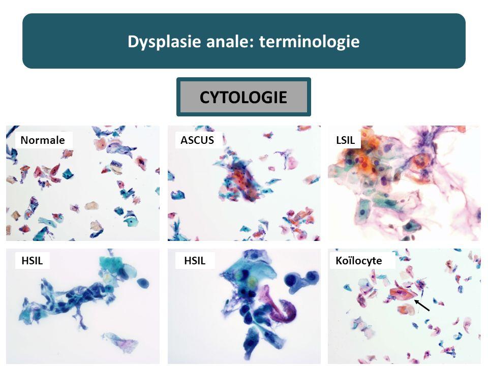 Dysplasie anale: terminologie