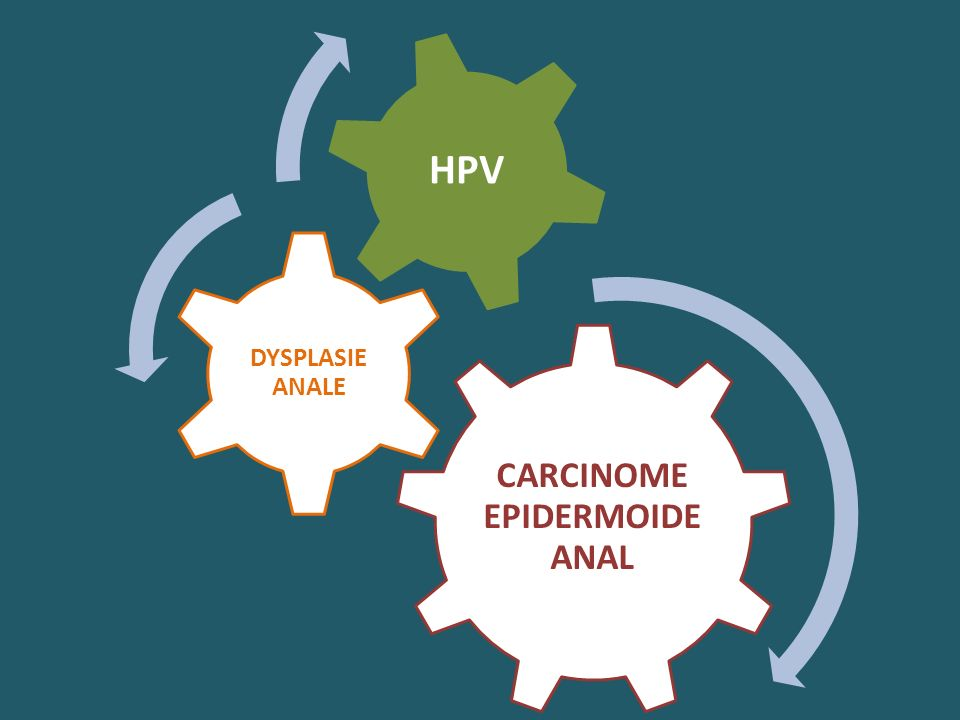 CARCINOME EPIDERMOIDE ANAL