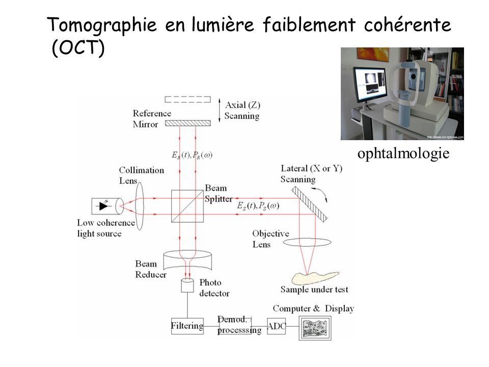 Tomographie en lumière faiblement cohérente (OCT)