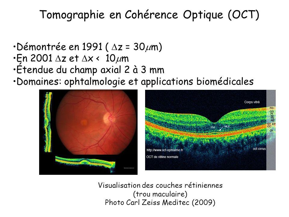 Tomographie en Cohérence Optique (OCT)
