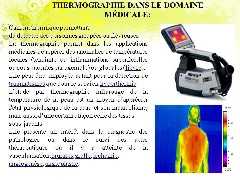 THERMOGRAPHIE DANS LE DOMAINE MÉDICALE:
