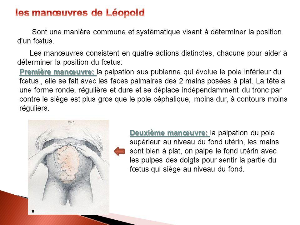 les manœuvres de Léopold