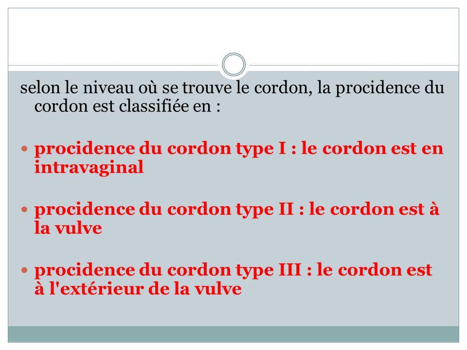 selon le niveau où se trouve le cordon, la procidence du cordon est classifiée en :