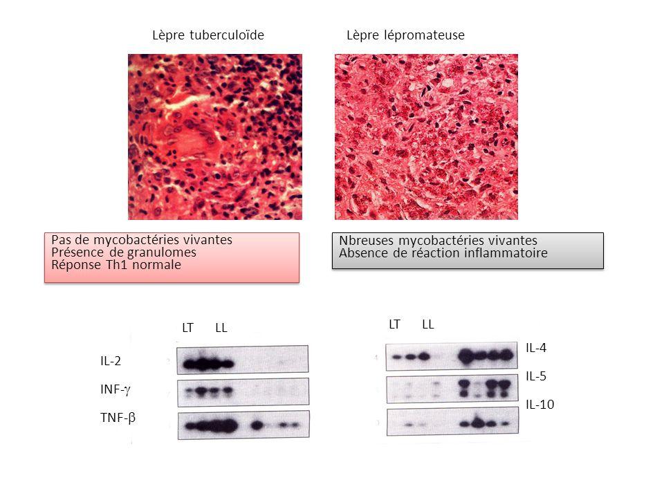 Lèpre tuberculoïde Lèpre lépromateuse. Pas de mycobactéries vivantes. Présence de granulomes. Réponse Th1 normale.