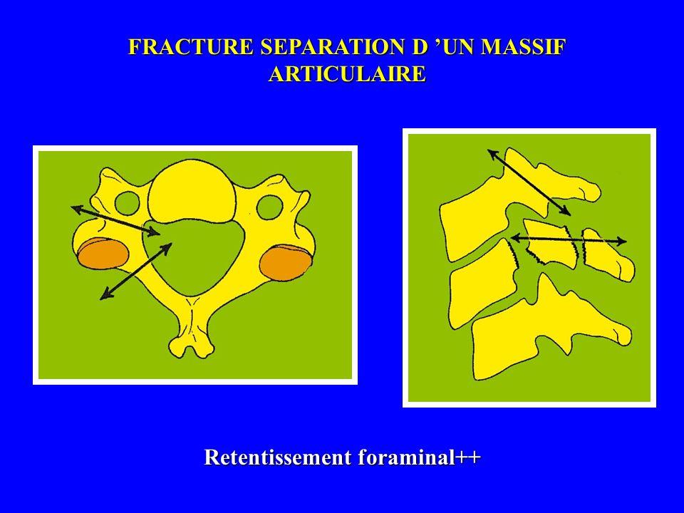 FRACTURE SEPARATION D 'UN MASSIF ARTICULAIRE