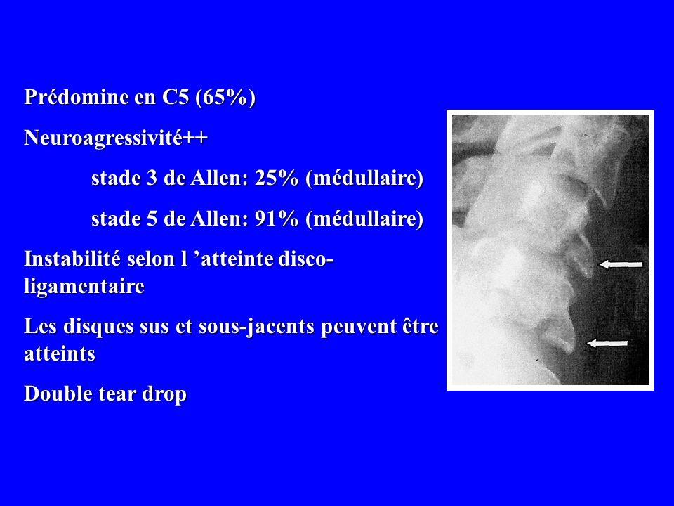 Prédomine en C5 (65%)Neuroagressivité++ stade 3 de Allen: 25% (médullaire) stade 5 de Allen: 91% (médullaire)