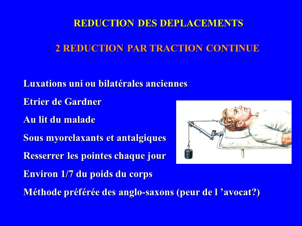 2 REDUCTION PAR TRACTION CONTINUE