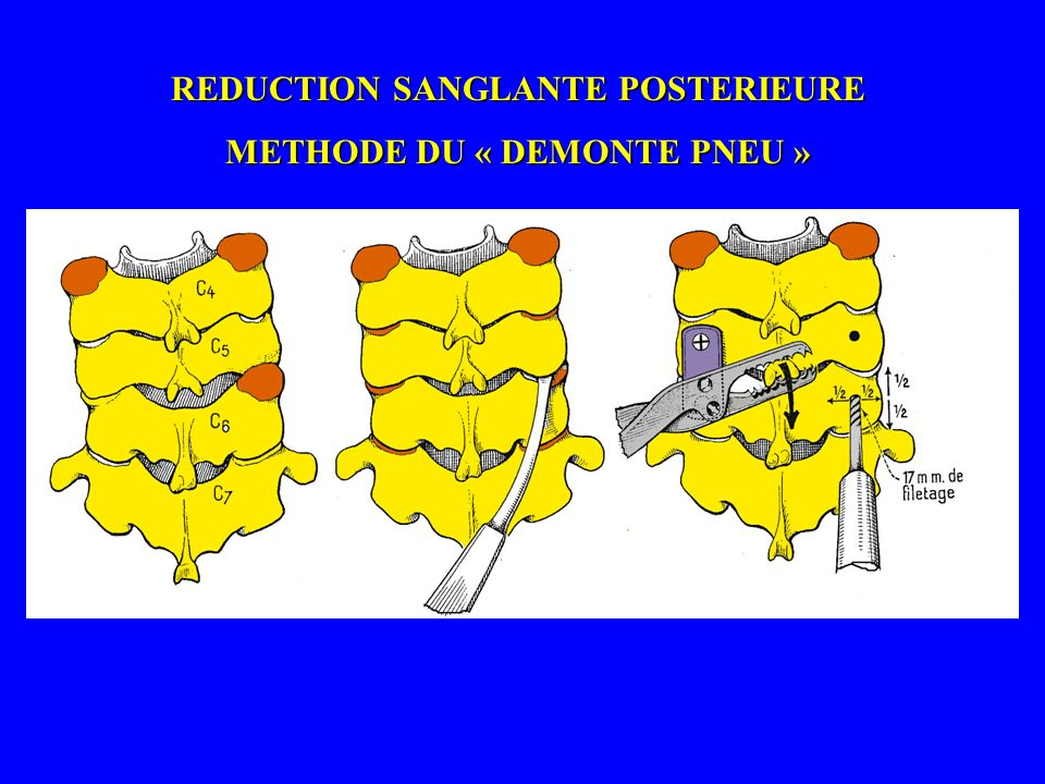 REDUCTION SANGLANTE POSTERIEURE METHODE DU « DEMONTE PNEU »