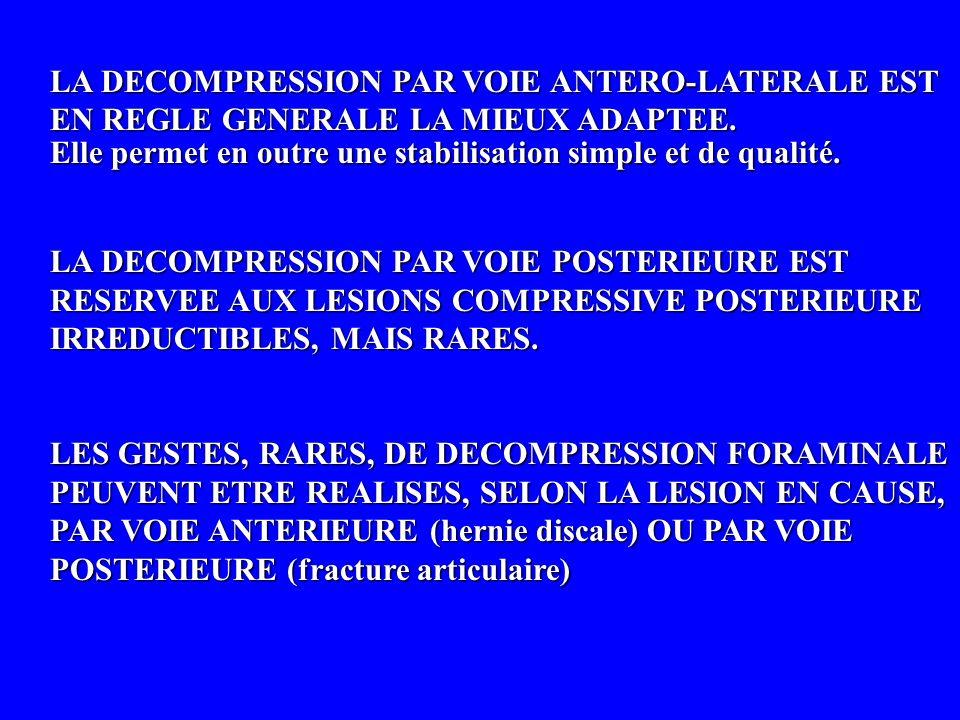 LA DECOMPRESSION PAR VOIE ANTERO-LATERALE EST EN REGLE GENERALE LA MIEUX ADAPTEE.