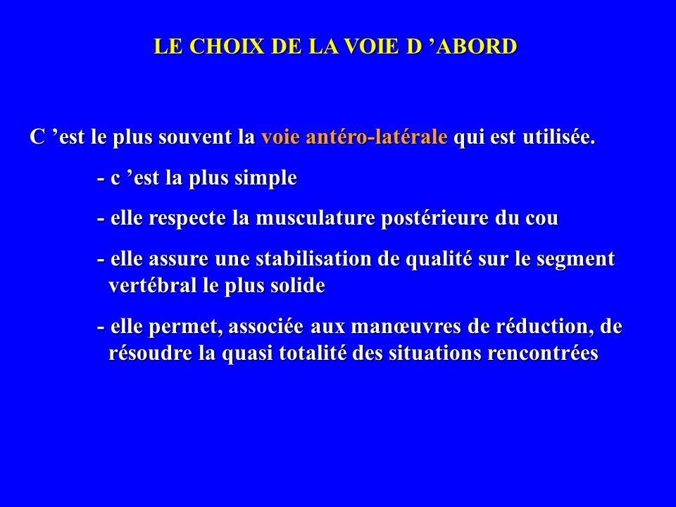 LE CHOIX DE LA VOIE D 'ABORD