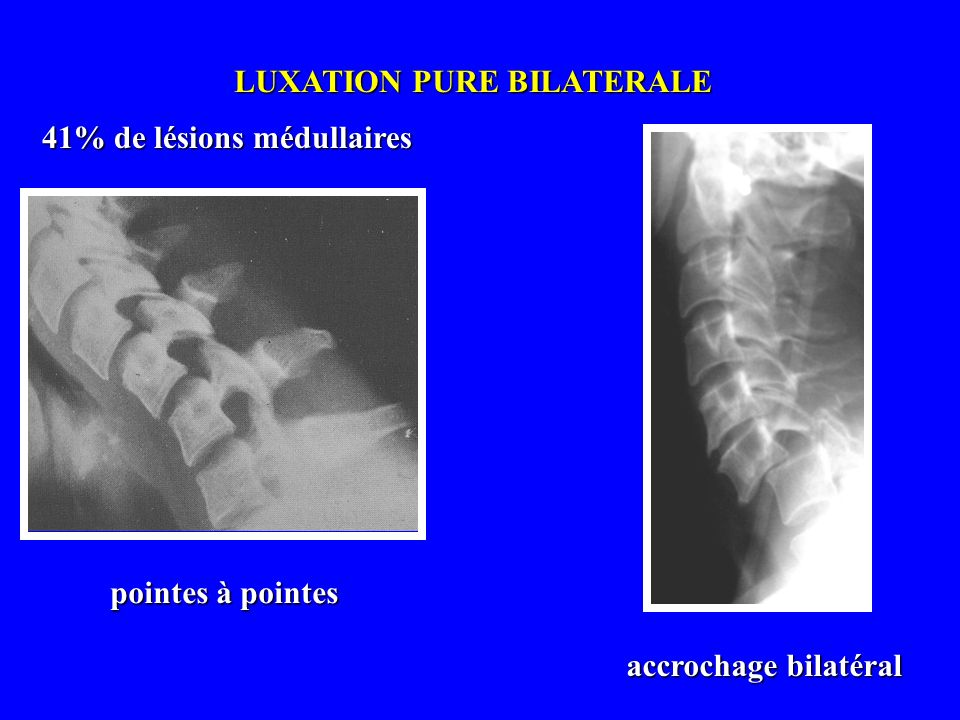 LUXATION PURE BILATERALE
