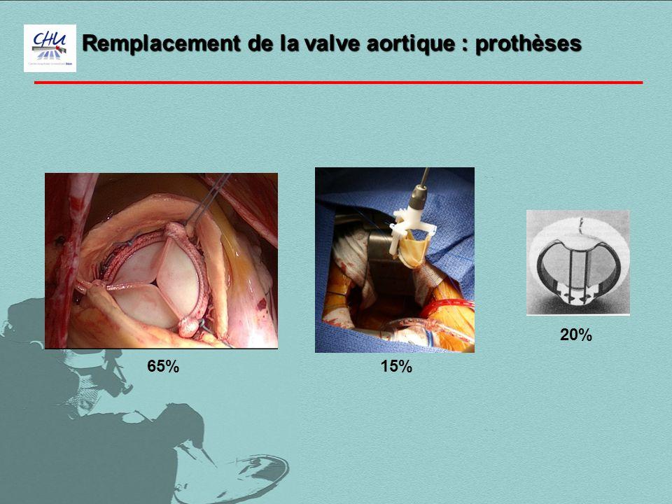 Remplacement de la valve aortique : prothèses
