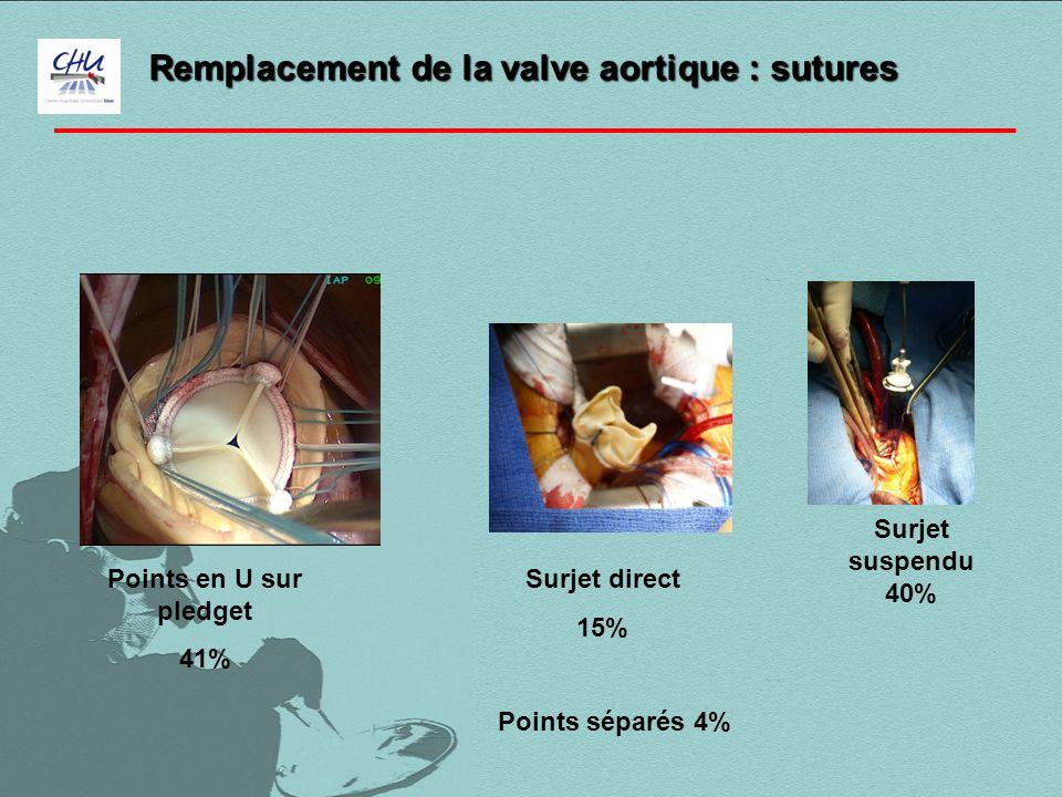 Remplacement de la valve aortique : sutures