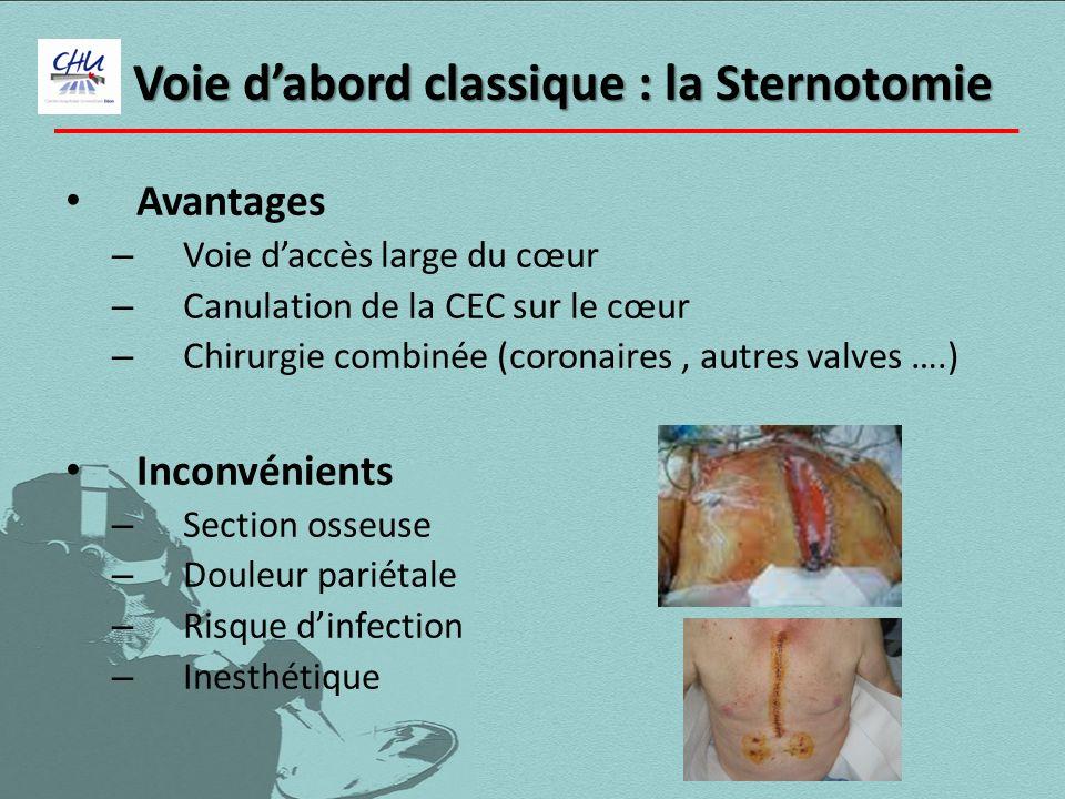 Voie d'abord classique : la Sternotomie