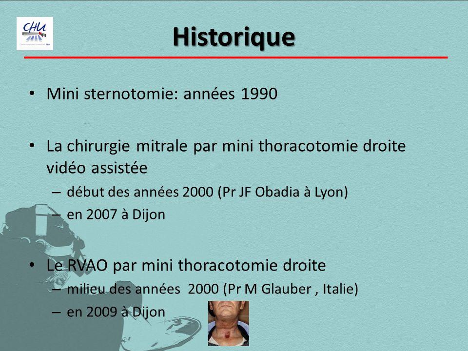 Historique Mini sternotomie: années 1990