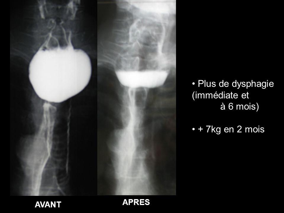 Plus de dysphagie (immédiate et à 6 mois) + 7kg en 2 mois APRES AVANT