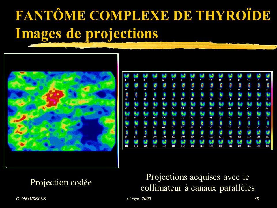 FANTÔME COMPLEXE DE THYROÏDE Images de projections
