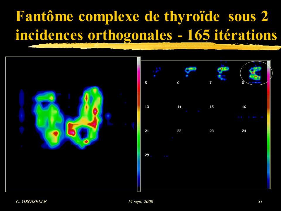 Fantôme complexe de thyroïde sous 2 incidences orthogonales - 165 itérations