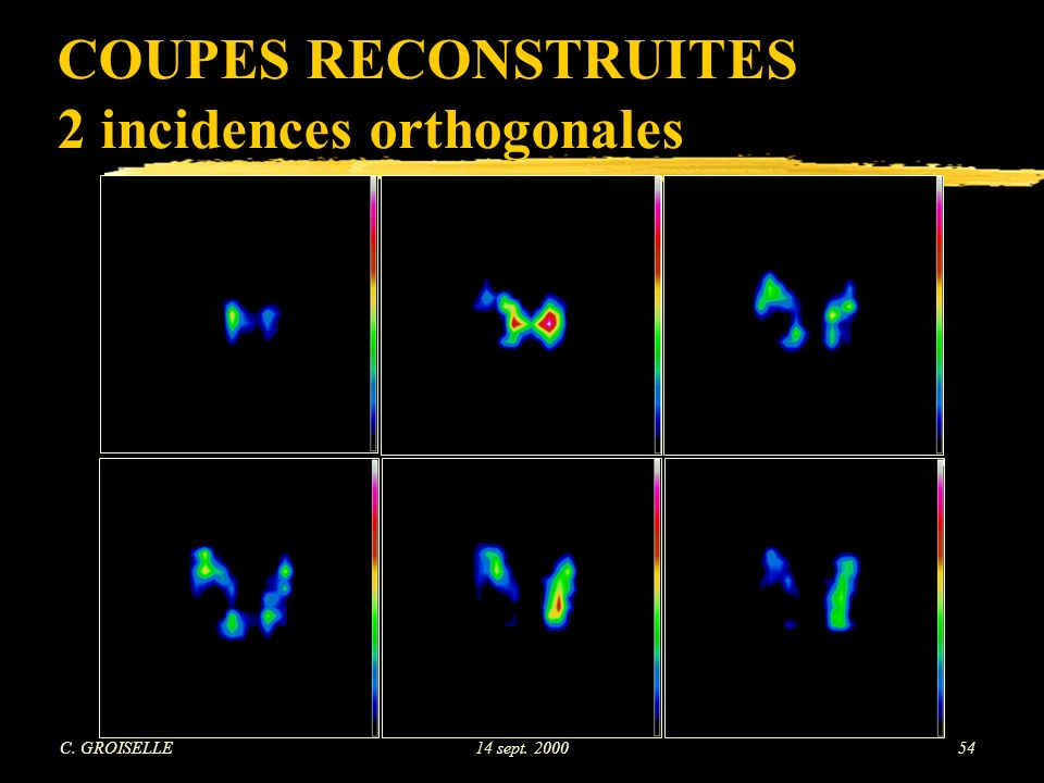 COUPES RECONSTRUITES 2 incidences orthogonales