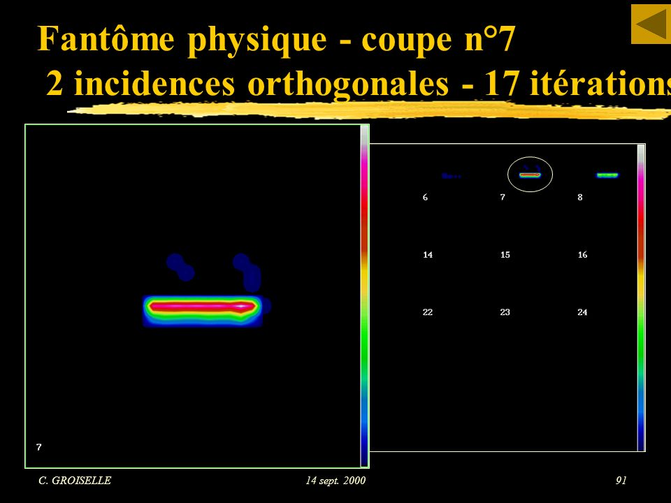 Fantôme physique - coupe n°7 2 incidences orthogonales - 17 itérations