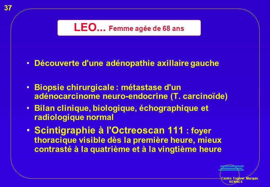 37 LEO... Femme agée de 68 ans. Découverte d une adénopathie axillaire gauche.