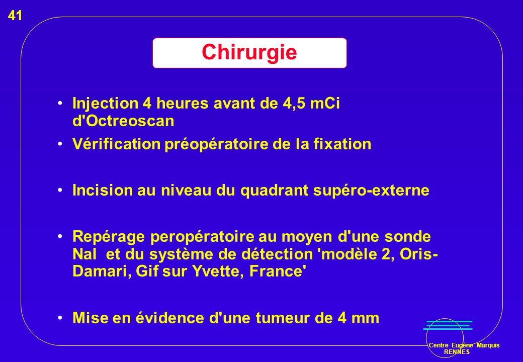 Chirurgie Injection 4 heures avant de 4,5 mCi d Octreoscan