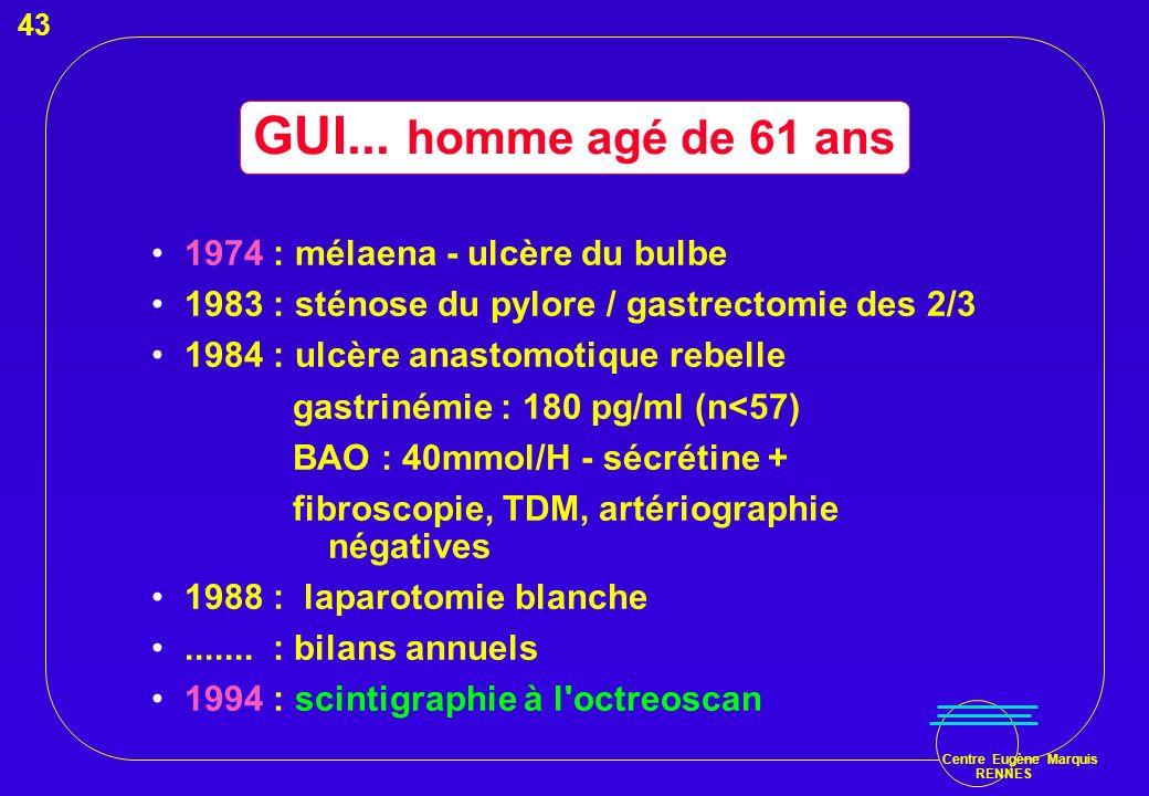 GUI... homme agé de 61 ans 1974 : mélaena - ulcère du bulbe