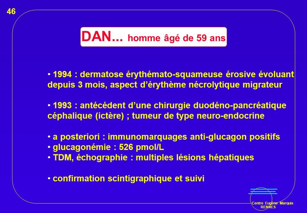 46 DAN... homme âgé de 59 ans. 1994 : dermatose érythémato-squameuse érosive évoluant. depuis 3 mois, aspect d'érythème nécrolytique migrateur.