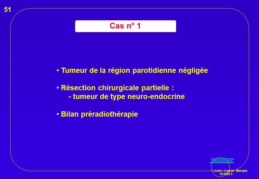 Cas n° 1 Tumeur de la région parotidienne négligée