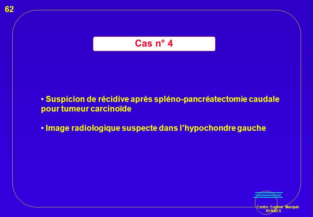 Cas n° 4 62 Suspicion de récidive après spléno-pancréatectomie caudale