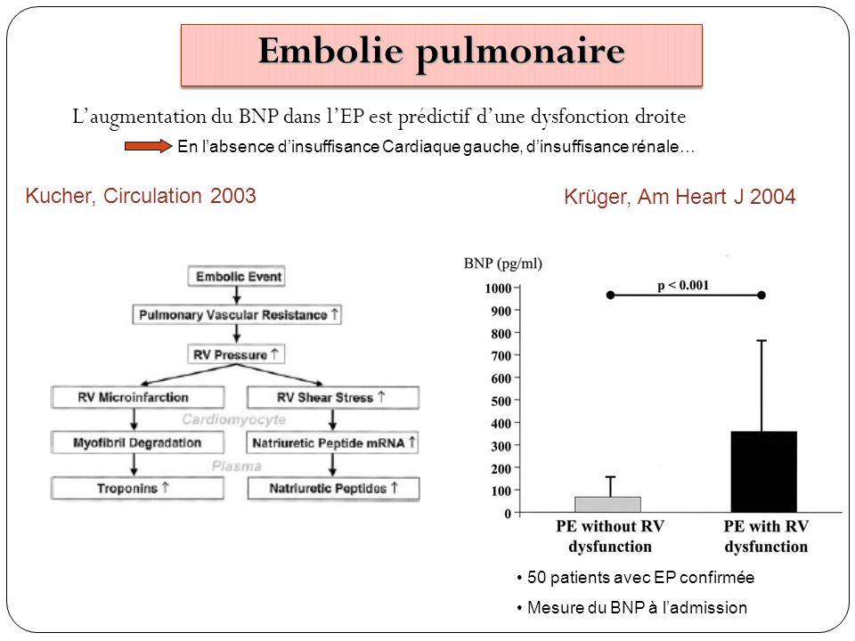 Embolie pulmonaire L'augmentation du BNP dans l'EP est prédictif d'une dysfonction droite.