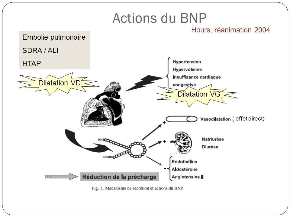 Actions du BNP Hours, réanimation 2004 Embolie pulmonaire SDRA / ALI