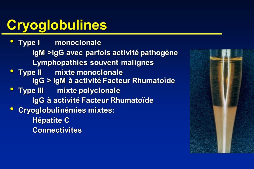 Cryoglobulines Type I monoclonale