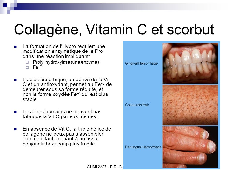 Collagène, Vitamin C et scorbut