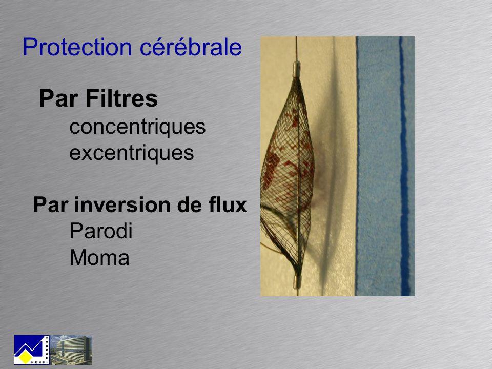 Protection cérébrale Par Filtres concentriques excentriques Par inversion de flux Parodi Moma