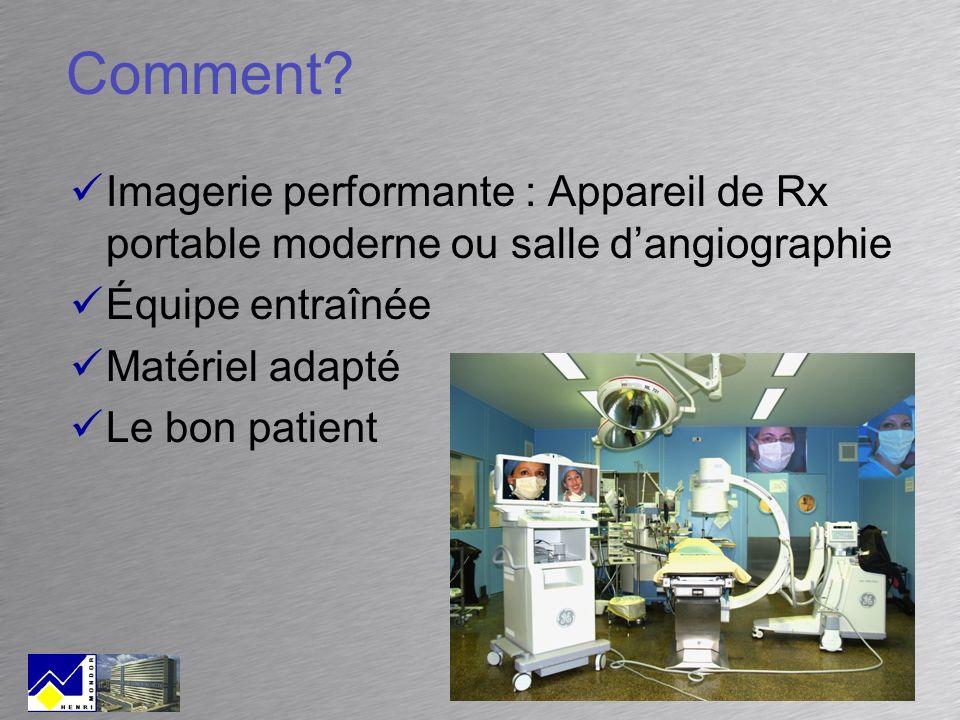 Comment Imagerie performante : Appareil de Rx portable moderne ou salle d'angiographie. Équipe entraînée.
