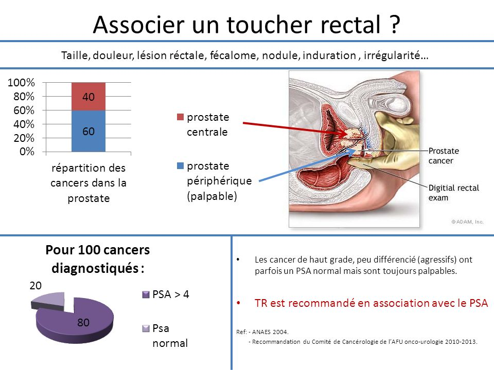 Associer un toucher rectal